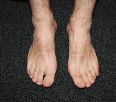 Adult%20Foot%204 Adult's foot